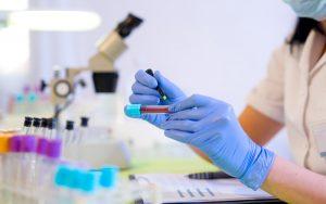 Diagnóstico de câncer em até 30 dias pelo SUS está na pauta do Plenário