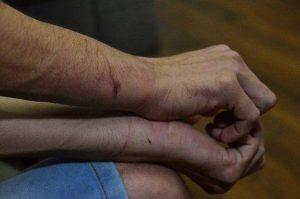 Homem denuncia tortura após ser acusado de roubo no trabalho, em Manaus