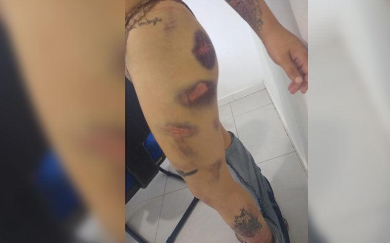 Acusado de obrigar ex-namorada a comer fezes é denunciado por outra vítima