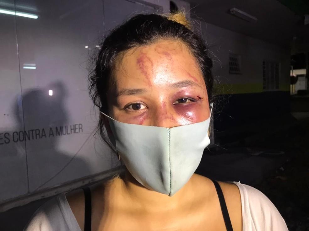 Promotora de vendas denuncia que foi tirada do trabalho e agredida na rua por ex-namorado em Manaus